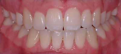 fixed brace after front