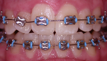 fixed braces in use